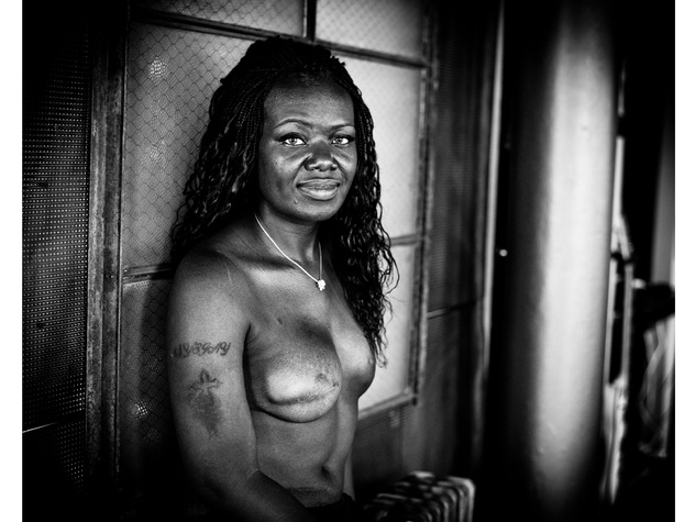 The SCAR Project breast cancer Shante October 2013