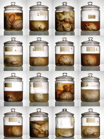 Malformed: Forgotten Brains of the Texas State Mental Hospital - Photo by Adam Voorhes