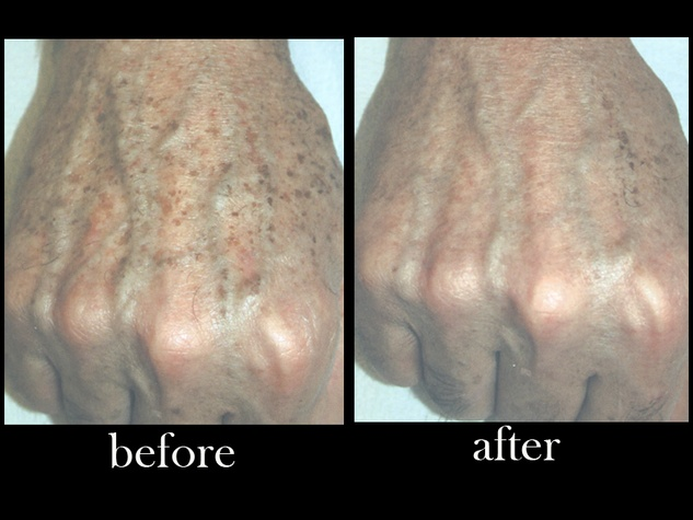 Austin Photo Set: dr. zimmet_skin treatment_feb2013_hand