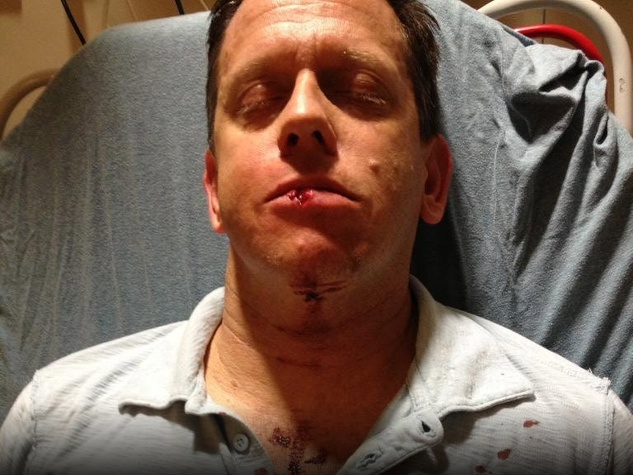 Andrew Oppleman after the assault in downtown Austin in September 2012
