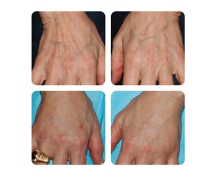Austin Photo Set: dr zimmet_hands before and after_jan 2013_2